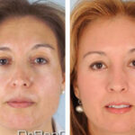 Primary Rhinoplasty APRS Houston
