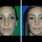 Before and After Revision Rhinoplasty Houston