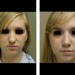 Teen Rhinoplasty Houston