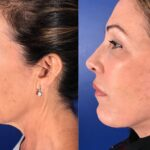Chin Implant Chin Augmentation