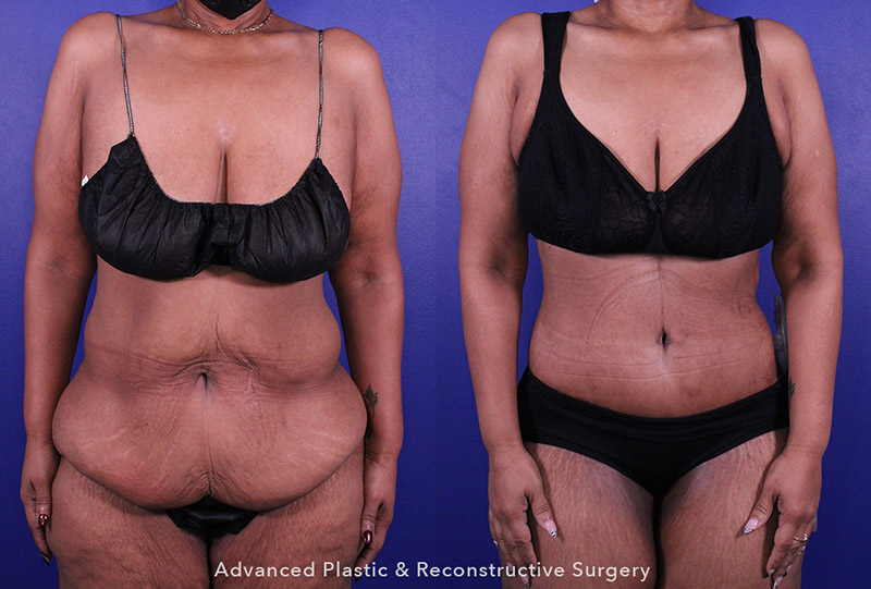 abdominoplasty Tummy Tuck - Before and After